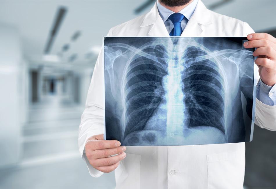 Röntgenbild einer Lungenfunktionsuntersuchung